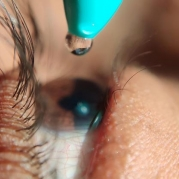 Researchers Find New Drug Can Quickly Reverse Eye Pressure Increases from Steroid Eye Drops
