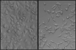 Study shows how breast cancer cells break free to spread in the body