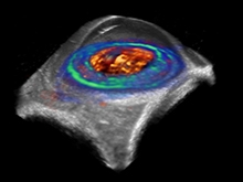 Biomedical Imaging and Instrumentation